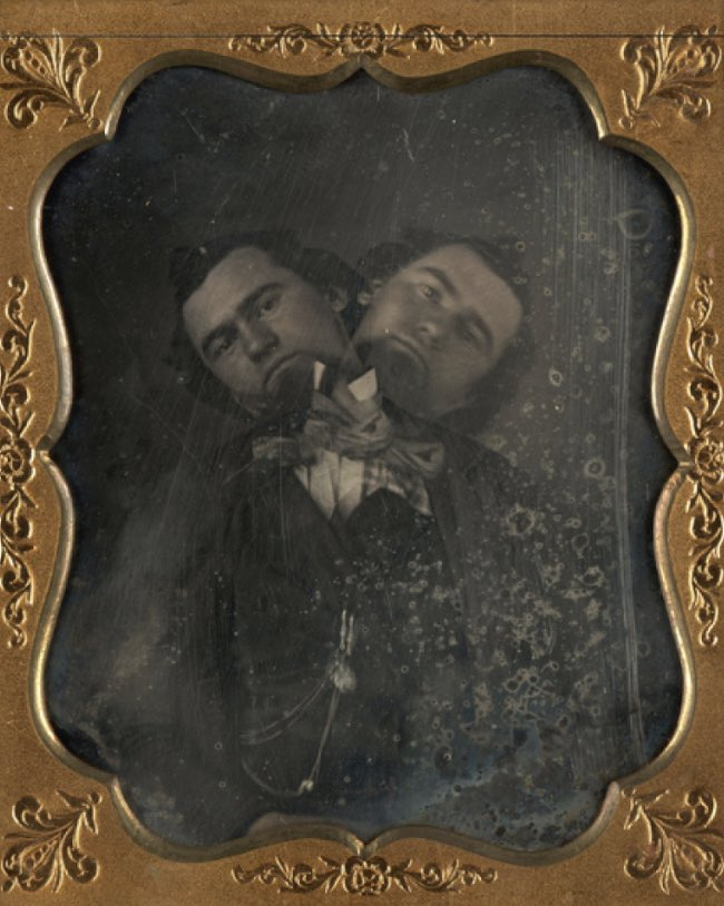 Unidentified American artist Two-Headed Man ca. 1855